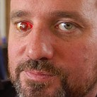 Filmmaker who lost an eye replaces it with a working camera